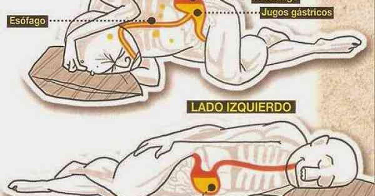 Esto sucede cuando duermes del lado izquierdo de tu cuerpo