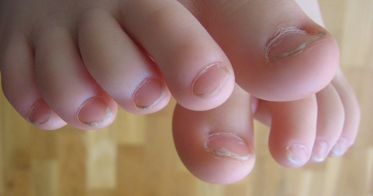 Mild Nail Fungus - 2018 images & pictures - 10 Best Simple Easy ...