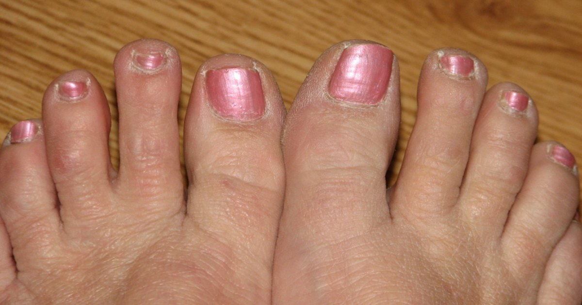 Aconsejen que sanar el hongo de las uñas