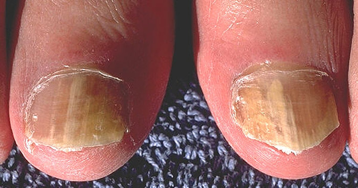 How to use bleach for curing toenail fungus ehow uk