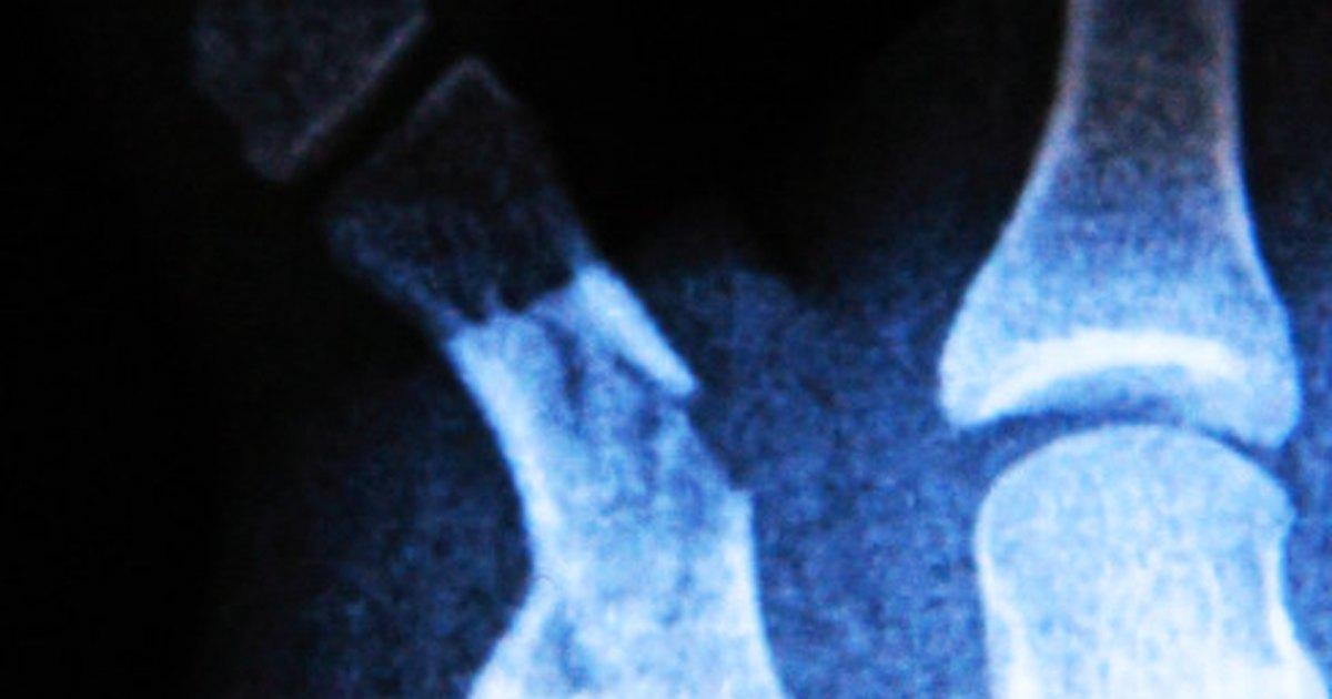 what does a bruised tailbone feel like