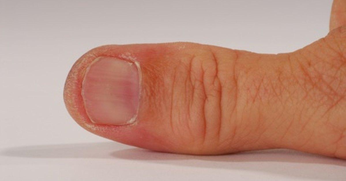 Adult thumb pic