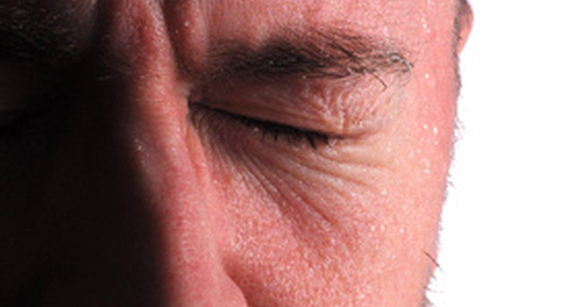 Thank for hyperhidrosis facial scalp opinion you