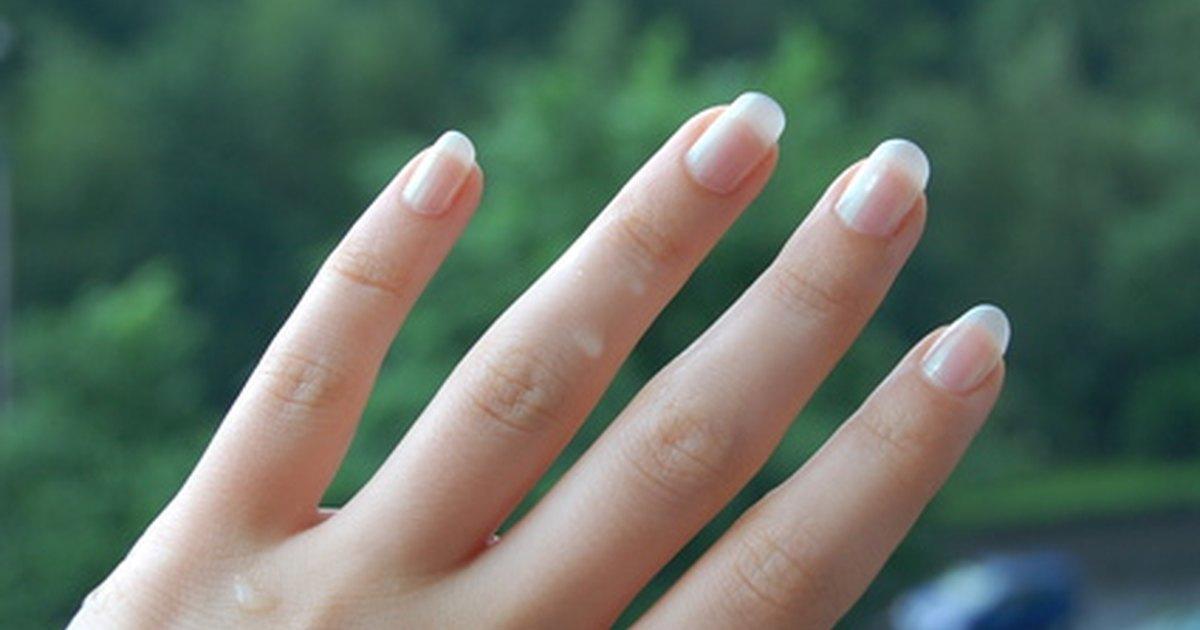 El tratamiento del hongo de uña sobre las uñas de las manos