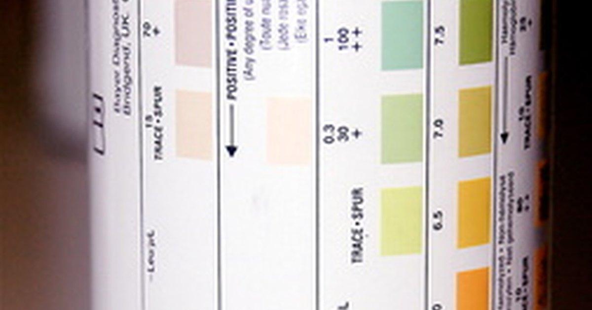 Qu es el pH vaginal - VIX