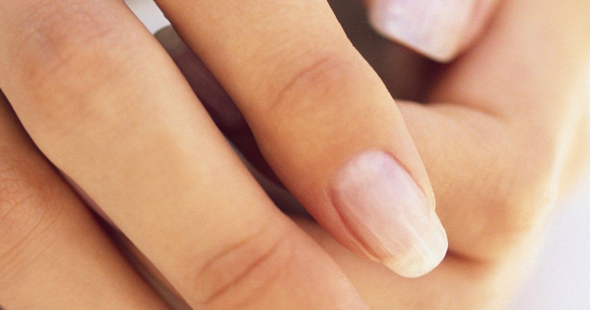 El tratamiento de la eccema seca en las manos