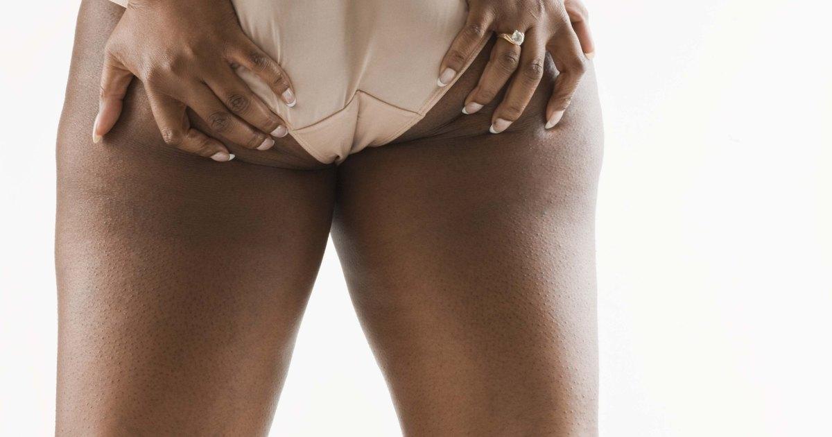 La osteocondrosis del dolor en la nalga