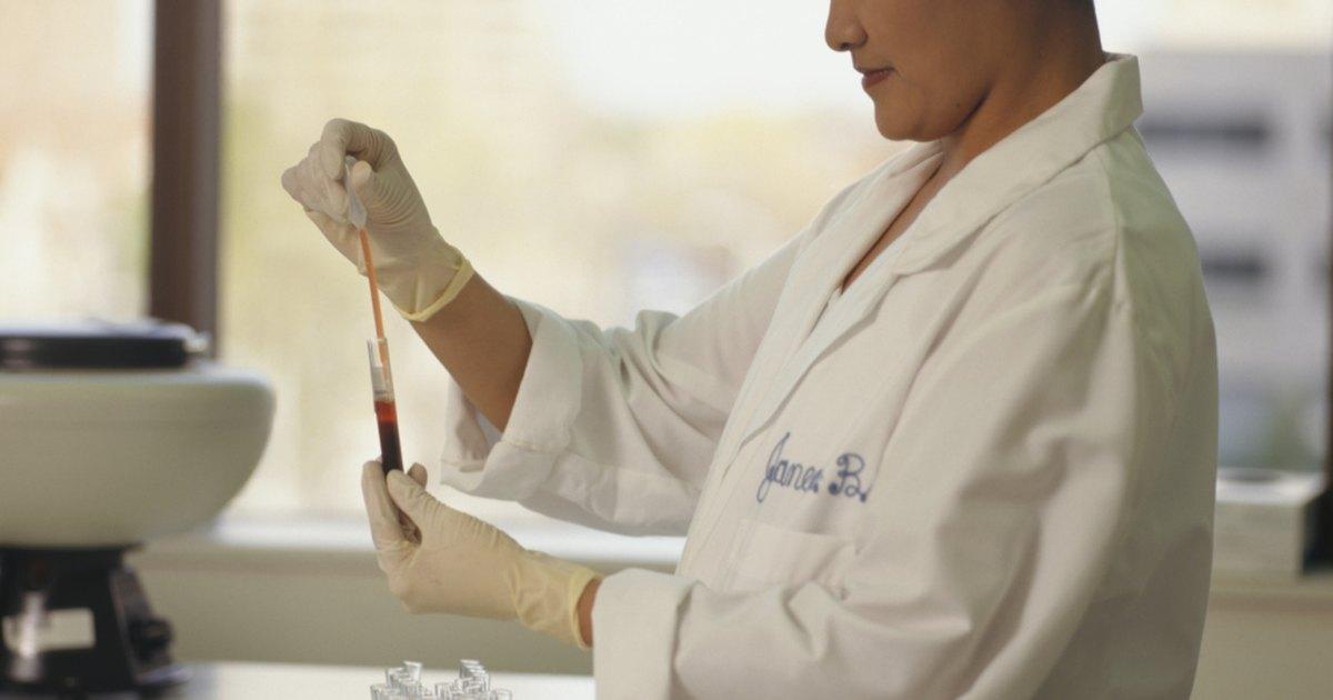 Bastonetes baixos no exame de sangue
