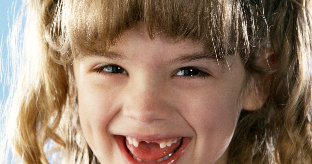 4 formas de sacar un diente flojo - wikiHow