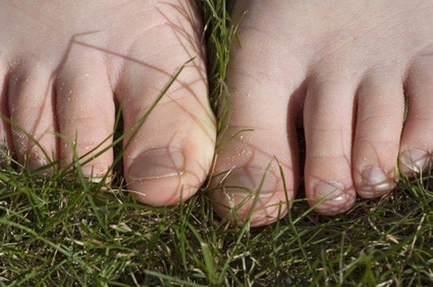 alimentos naturales para curar la gota la manzana es buena para el acido urico remedios caseros para gota en el pie