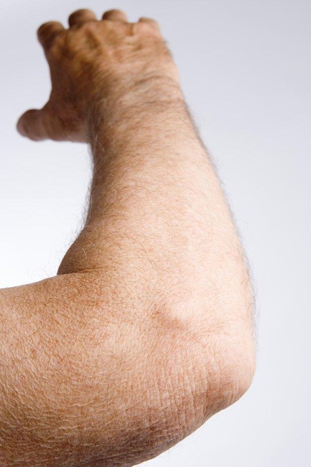 tratamiento de la gota colchicina el acido urico produce dolor en las rodillas medicinas naturales para curar el acido urico