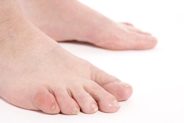niveles de acido urico elevados gota curacion natural medidor acido urico